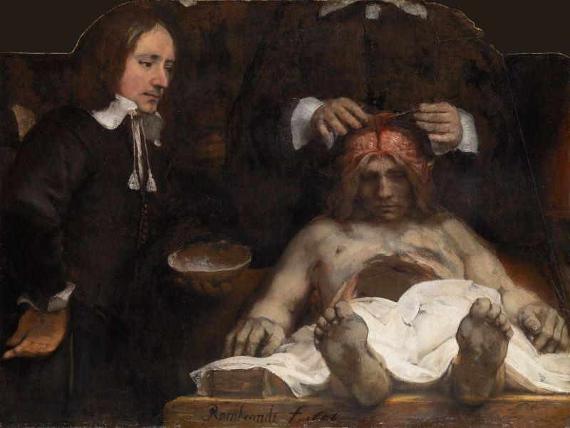 Rembrandt, Anatomie des Dr. Deyman, 1656, Öl auf Leinwand, 100 x 134 cm, Amsterdam Museum).