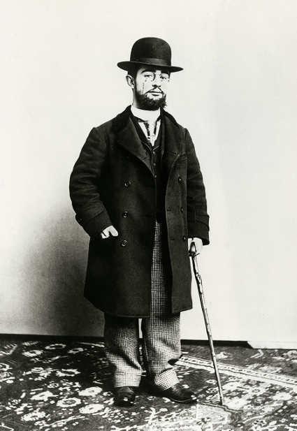 Paul Sescau, Toulouse-Lautrec stehend mit Spazierstock, 1894, Neuabzug von einem Glasnegativ, Albi, Musee Toulouse-Lautrec © Musée Toulouse-Lautrec, Albi – Tarn – France.